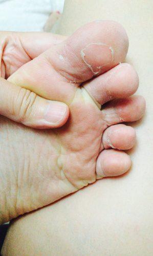 ダイソーのフットマスクパックを使用して3日後の足裏はまだ皮は剥がれない