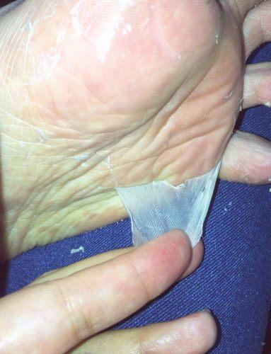 ダイソーのフットマスクパックを使用して4日後、めっちゃ皮が剥がれる