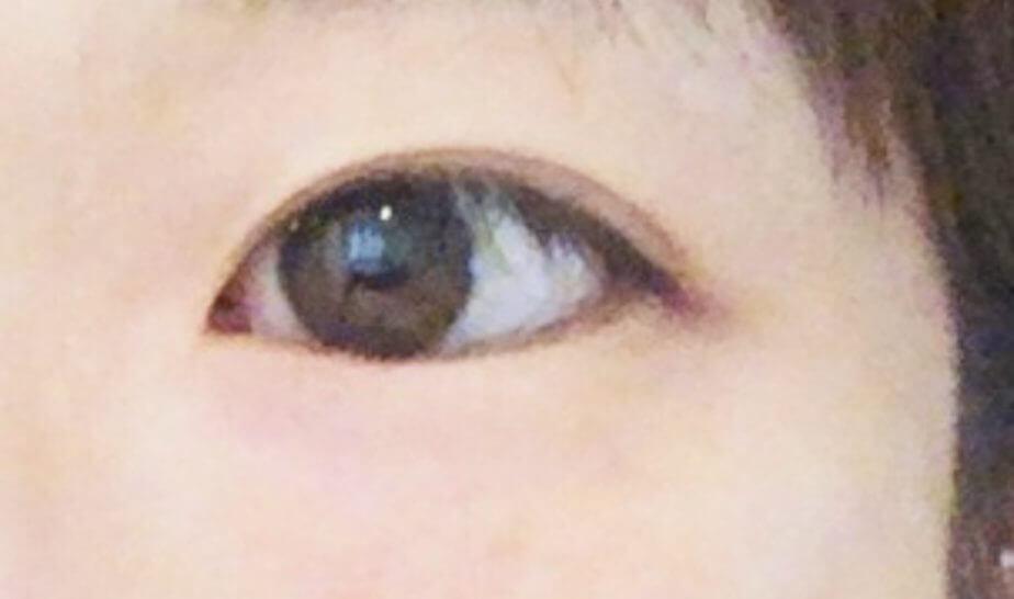 パリジェンヌラッシュを受ける前の目