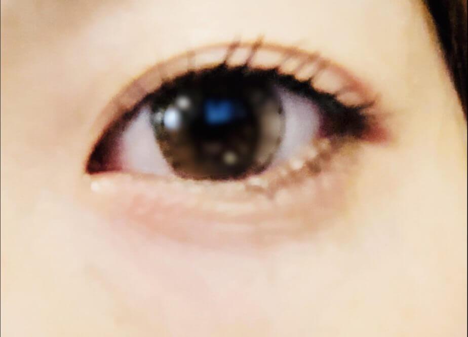 パリジェンヌラッシュを受けたあとの目