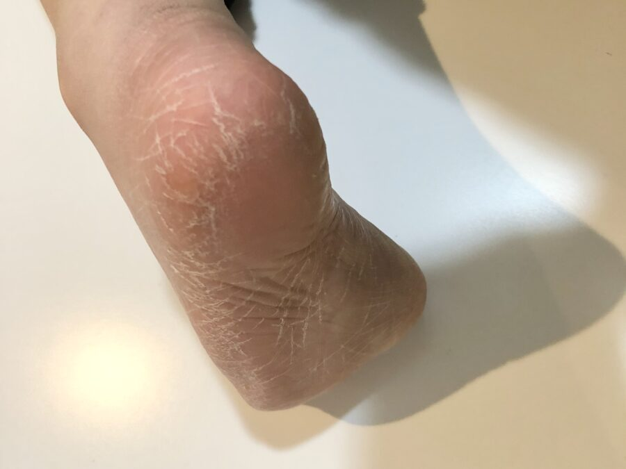ダイソー ガラスかかとやすりをした後の私の足
