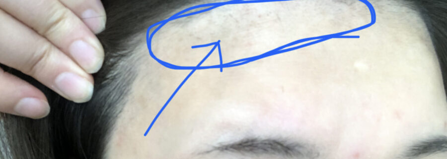 あおばクリニックの顔脱毛2回目のレポート