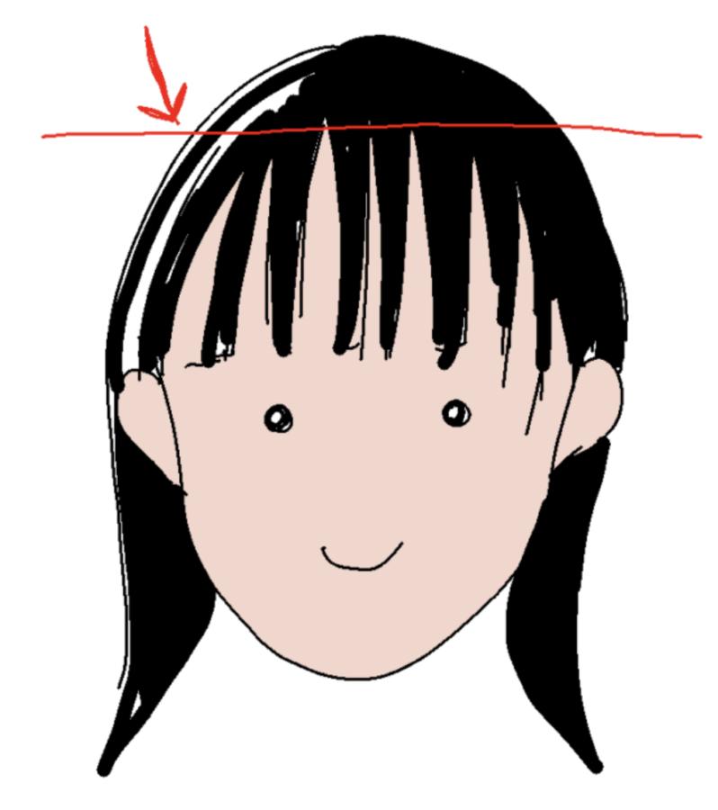 ヘアライン脱毛の注意点